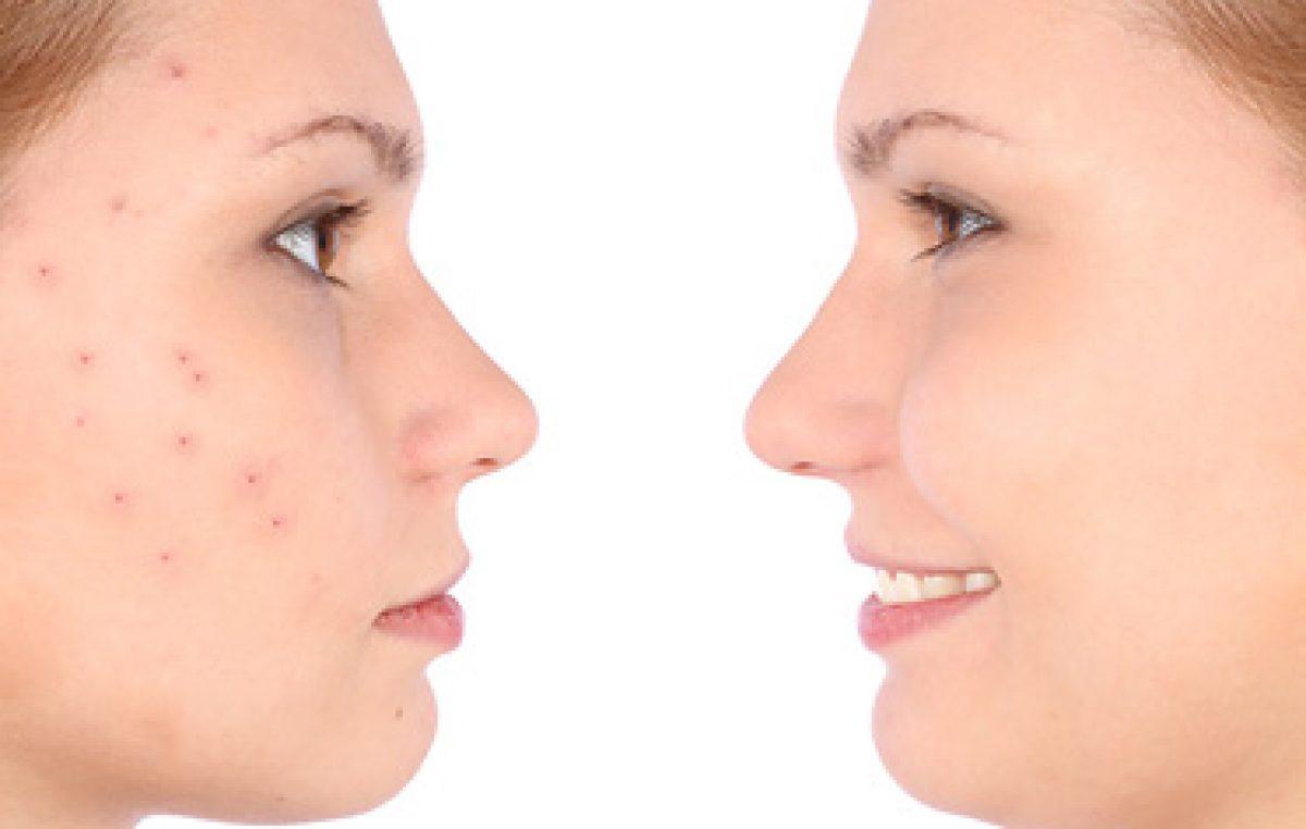 acne Chinese Medication